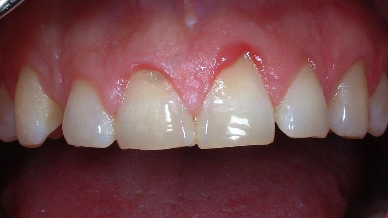 بهترین دندانپزشک اصفهان | تحلیل لثه چیست ؟