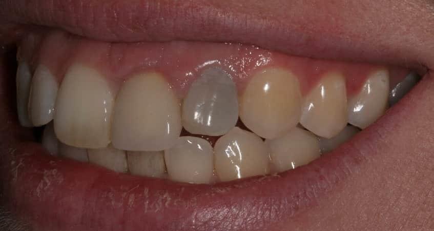 علت تغییر رنگ دندان | بهترین ایمپلنت اصفهان