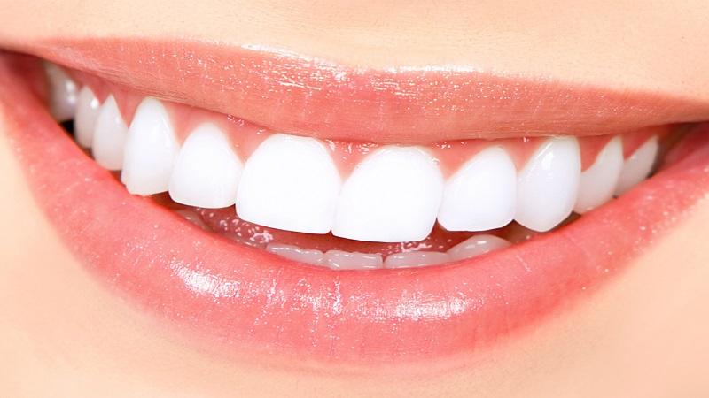 بهترین ایمپلنت اصفهان | سفید کردن دندان ها