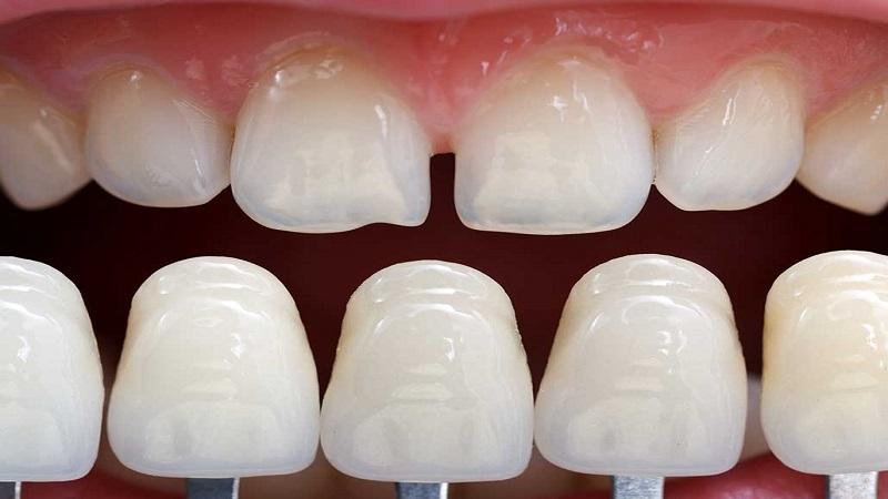 بهترین دندانپزشک اصفهان | ماندگاری و مراحل کامپوزیت دندان