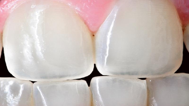 بهترین ایمپلنت اصفهان | محافظت از فرسودگی دندان ها چگونه است ؟