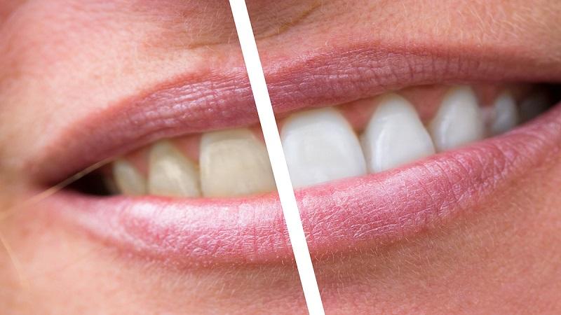 بهترین دندانپزشک اصفهان | مدیریت و درمان پلاک دندان
