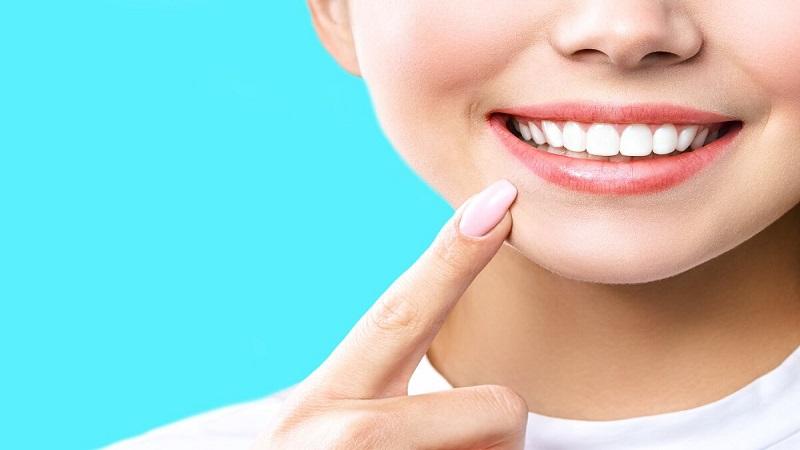 بهترین دندانپزشک اصفهان | وایتینگ دندان ها قبل و بعد از بریس