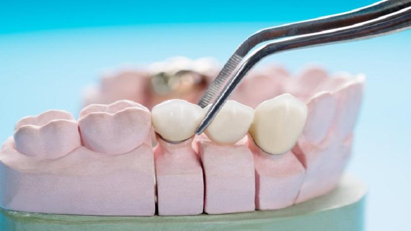 بهترین دندانپزشک اصفهان | پل دندانی درد دارد ؟