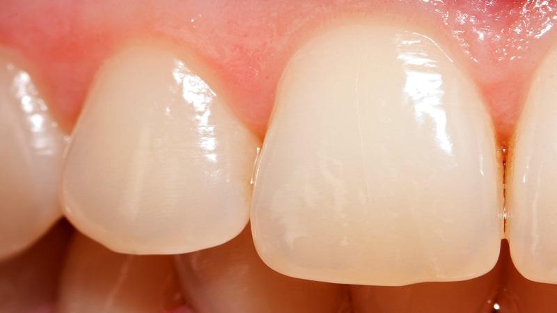 بهترین دندانپزشک اصفهان   چرا ساییدگی دندان رخ می دهد ؟