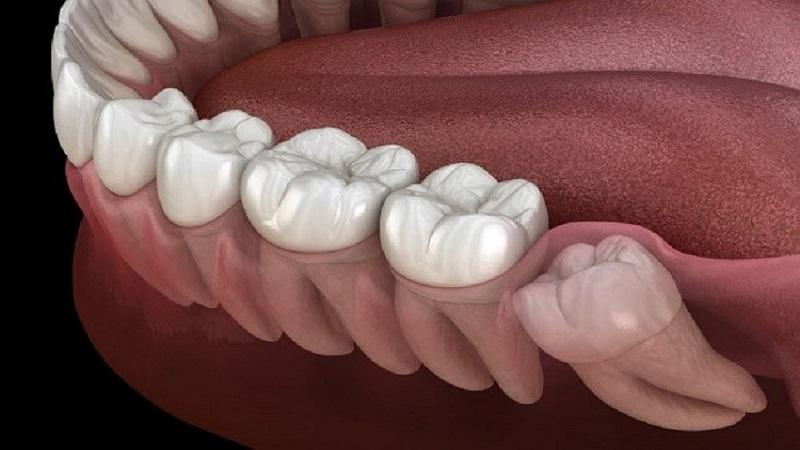 کشیدن دندان عقل نهفته | بهترین ایمپلنت اصفهان