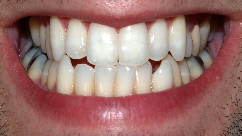 دندان نیش | بهترین ایمپلنت اصفهان