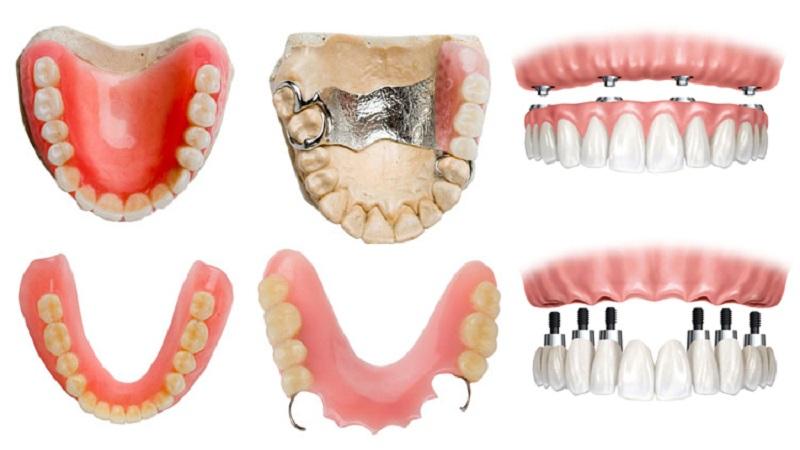 پروتزهای دندانی نیمه متحرک | بهترین ایمپلنت اصفهان