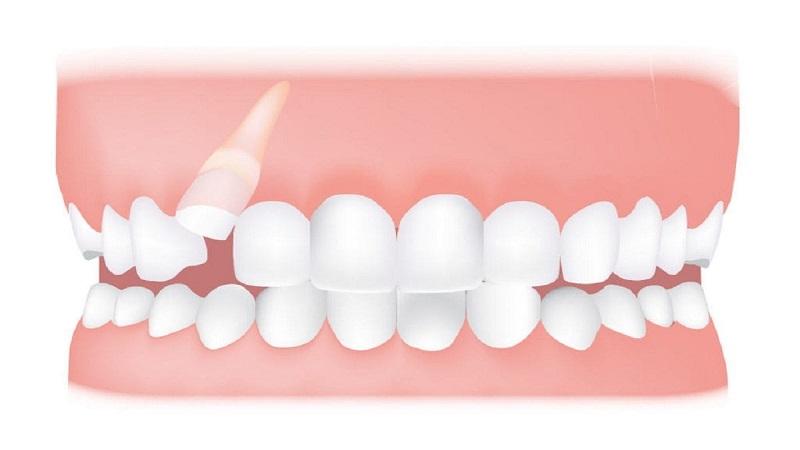 درمان دندان نیش نهفته | بهترین ایمپلنت اصفهان