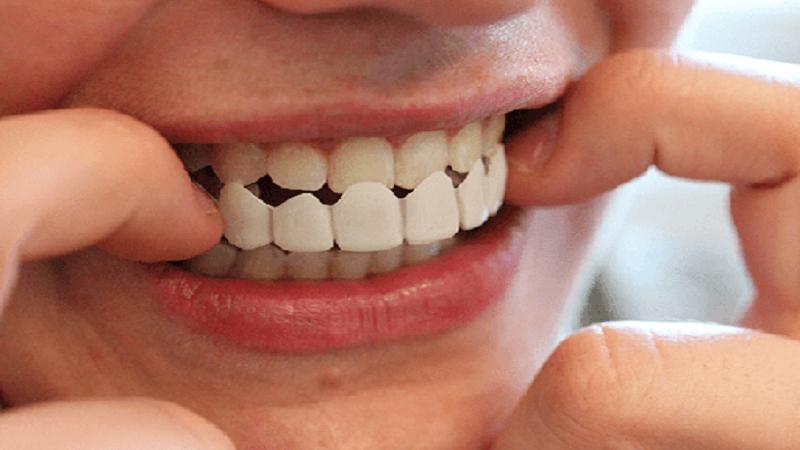 پروتز دندان چیست؟ | بهترین ایمپلنت اصفهان