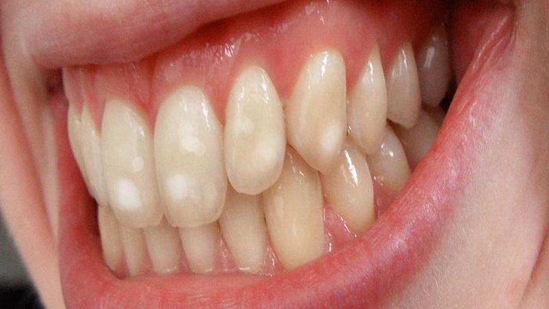تغییر رنگ دندانها | بهترین ایمپلنت اصفهان