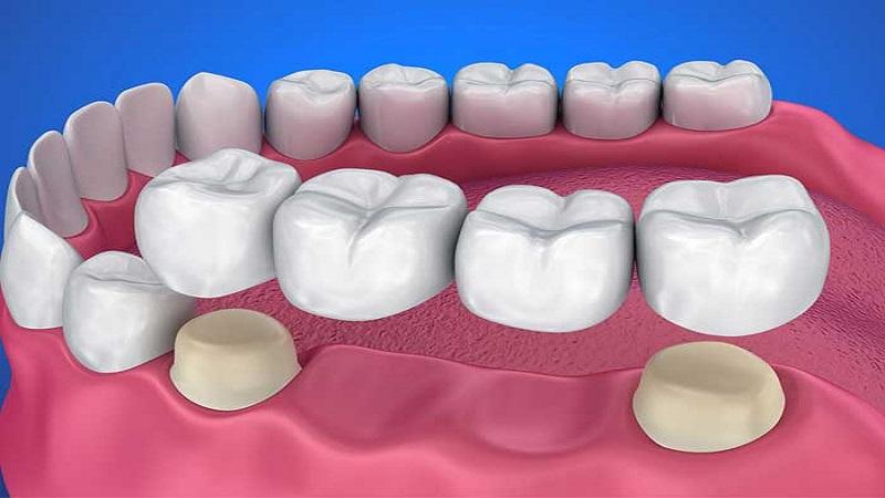 انواع بریج دندان یا پل دندانی | بهترین دندانپزشک اصفهان