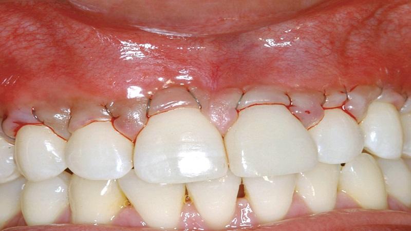 انواع عمل پیوند لثه   بهترین دندانپزشک اصفهان