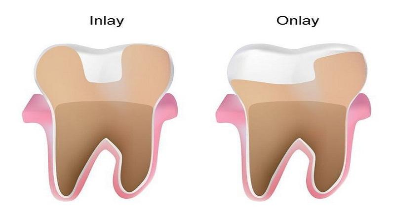 اینله و انله دندان چیست؟ | بهترین ایمپلنت اصفهان