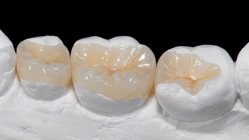 مراحل قرارگیری اینله و انله دندان | بهترین ایمپلنت اصفهان