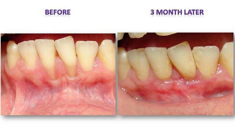 پیوند لثه چیست | بهترین دندانپزشک اصفهان