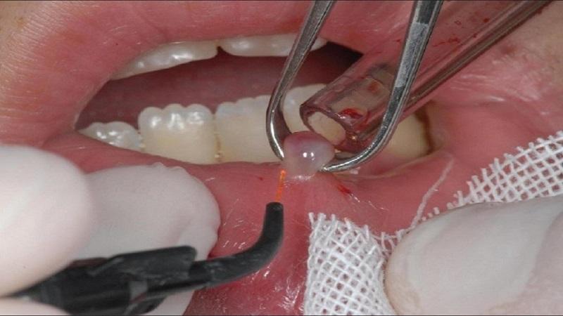 درمان کیست دندان چگونه است؟ | بهترین ایمپلنت اصفهان