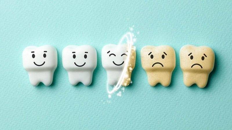 روش های برطرف کردن زردی دندان | بهترین ایمپلنت اصفهان