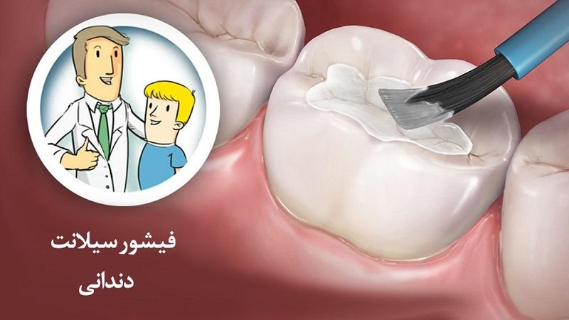 شیار پوش (فیشور سیلانت) چیست | بهترین دندانپزشک اصفهان