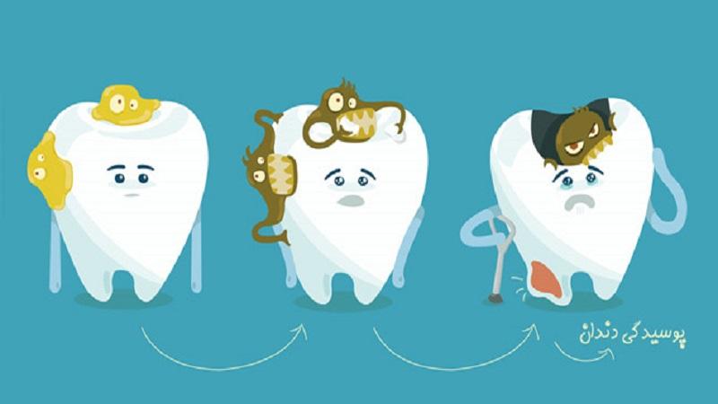 عوامل ایجاد پوسیدگی دندان | بهترین دندانپزشک اصفهان
