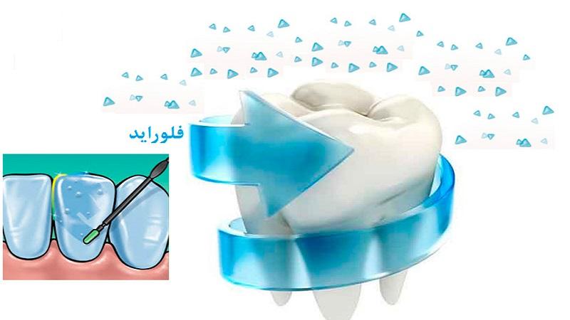 فلوراید برای کودکان | بهترین دندانپزشک اصفهان
