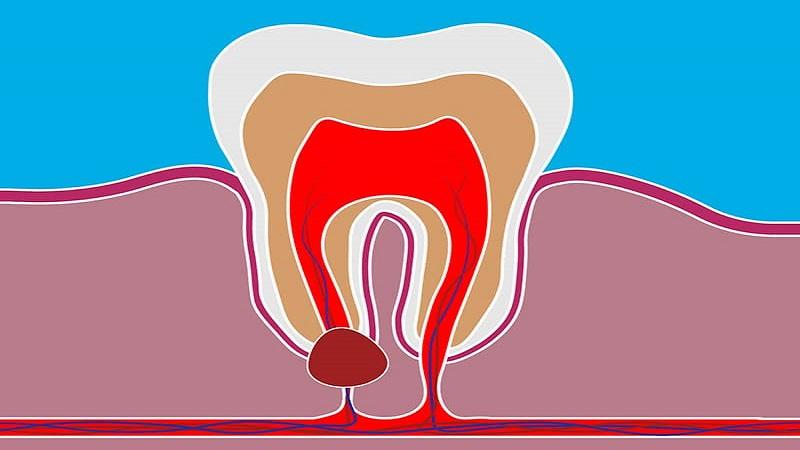 کیست دندان چگونه ایجاد می شود؟ | بهترین ایمپلنت اصفهان