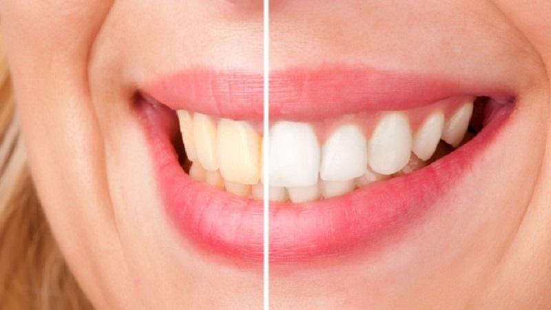 9 علت مهم و تاثیرگذار برای زردی دندان ها | بهترین ایمپلنت اصفهان