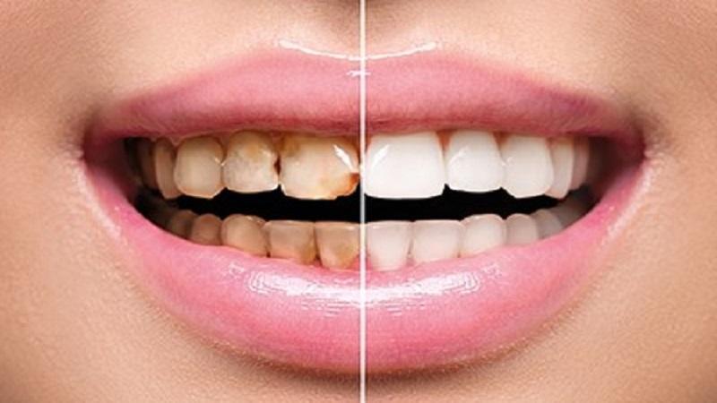 بدون سیلانت مانع پوسیدگی دندان شویم | بهترین دندانپزشک اصفهان