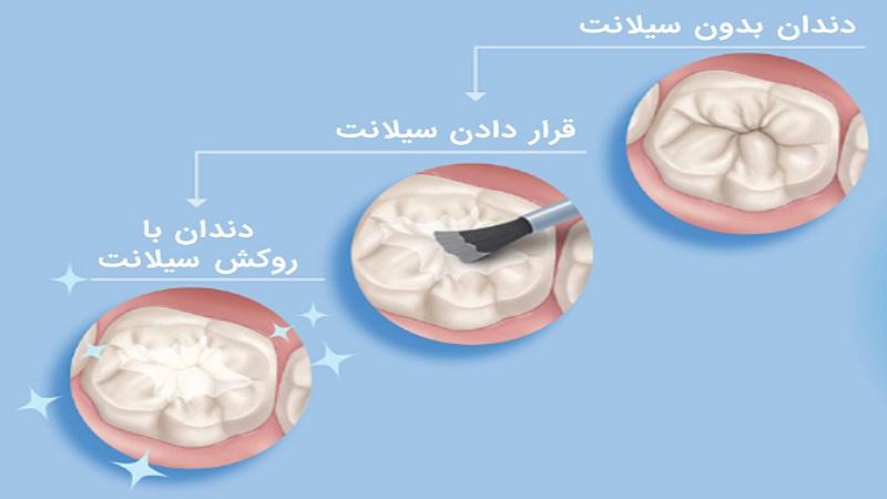 سیلانت برای چه کسانی باید مورد استفاده قرار بگیرد؟ | بهترین دندانپزشک اصفهان
