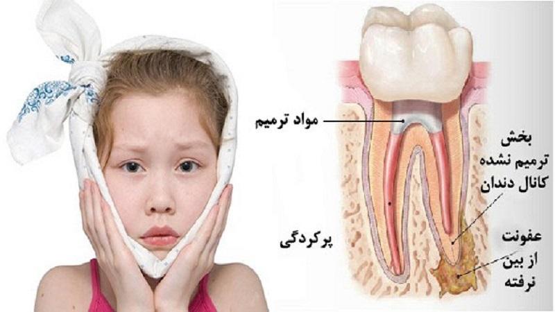 عفونت، آبسه دندانی در کودکان | بهترین دندانپزشک اصفهان