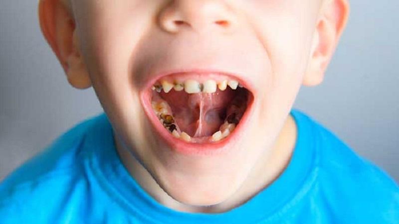 علائم آبسه دندان در کودکان   بهترین ایمپلنت اصفهان
