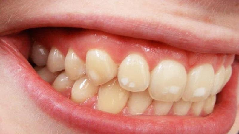 فلوروزیس دندانی در کودکان | بهترین ایمپلنت اصفهان