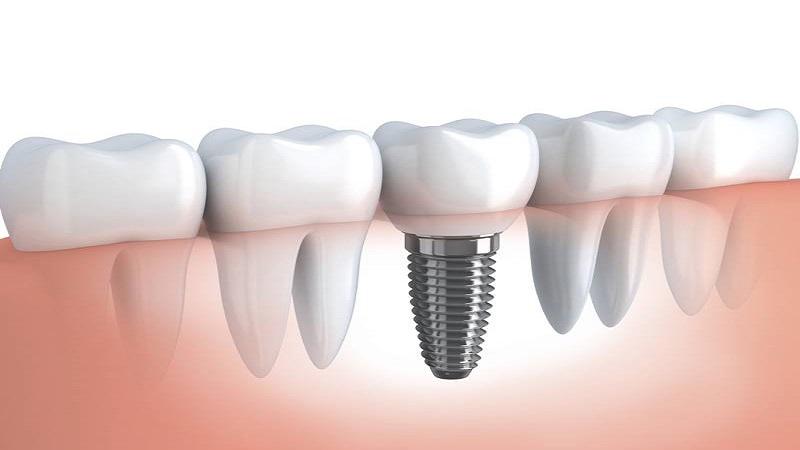 ایمپلنتهای دندانی زیر پریوستال   بهترین ایمپلنت اصفهان