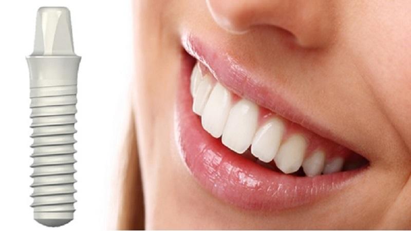 ایمپلنت اندوستیال دندان | بهترین ایمپلنت اصفهان