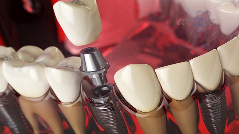 روشهای درمان پری ایمپلنت دندان | بهترین ایمپلنت اصفهان