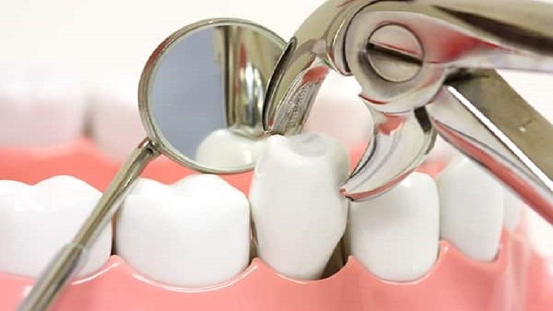 روشهای درمان پری ایمپلنت دندان   بهترین ایمپلنت اصفهان