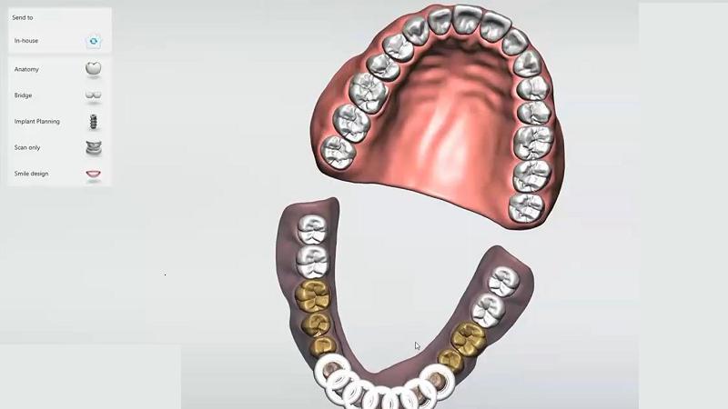 مزایای ایمپلنت های دندانپزشکی دیجیتال   بهترین ایمپلنت اصفهان