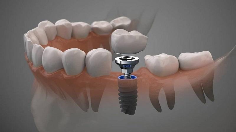 کاشت دندان چیست؟   بهترین ایمپلنت اصفهان