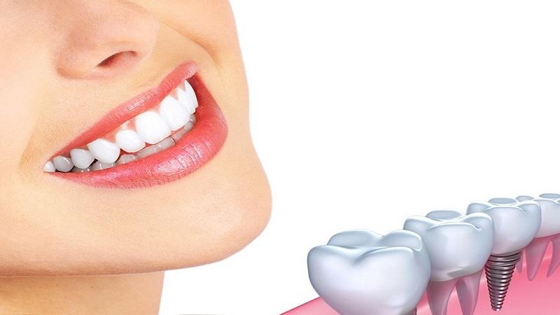 کاشت دندان چیست؟ | بهترین ایمپلنت اصفهان