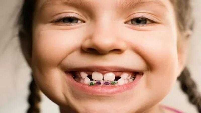 ارتودنسی دو دندان جلو   بهترین دندانپزشک اصفهان