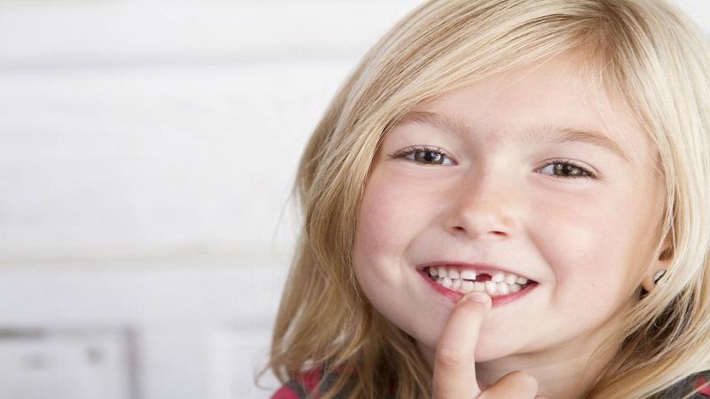 افتادن دندانهای شیری | بهترین ایمپلنت اصفهان