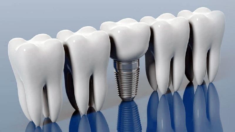ایمپلنت فوری چیست؟ | بهترین دندانپزشک زیبایی اصفهان