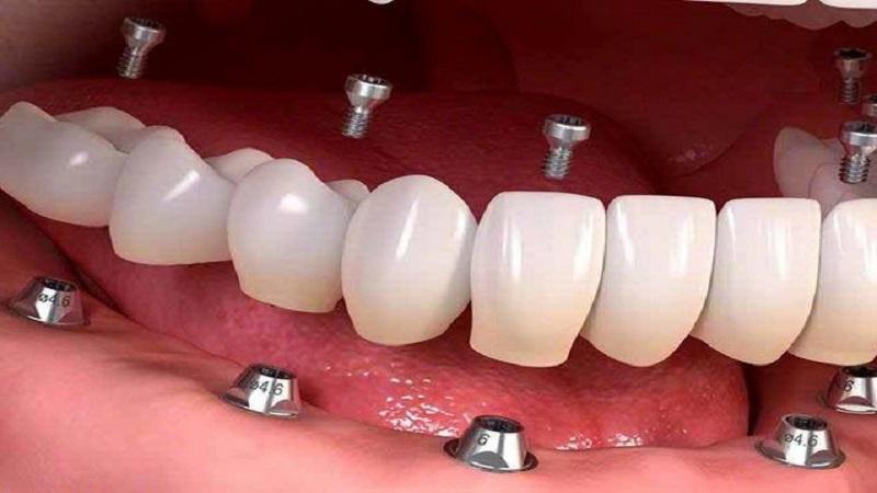 بازسازی کامل با پروتز ثابت بر پایه ایمپلنت | بهترین دندانپزشک اصفهان