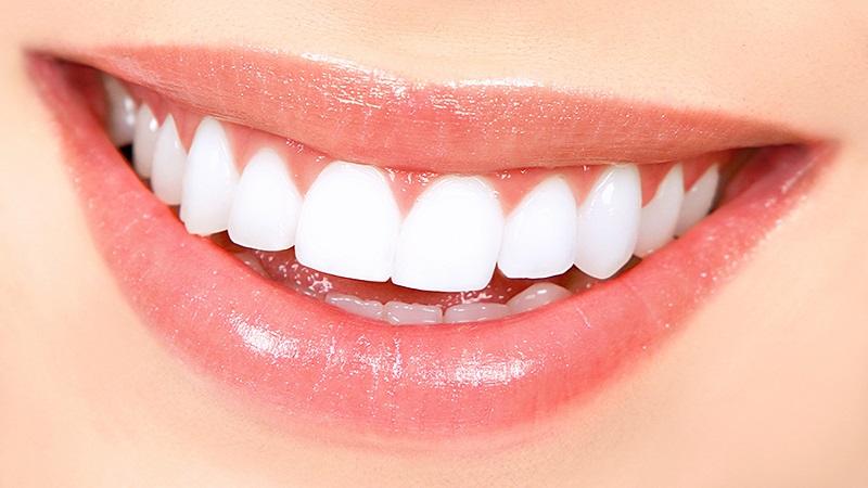بلیچینگ دندان پر شده | بهترین ایمپلنت اصفهان