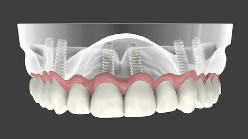 تفاوت ایمپلنت دندان و پروتز دندان | بهترین دندانپزشک زیبایی اصفهان