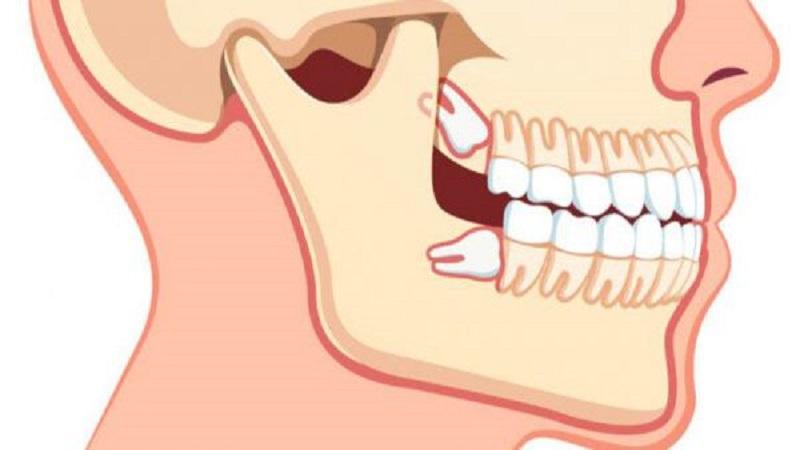 جراحی دندان عقل | بهترین ایمپلنت اصفهان