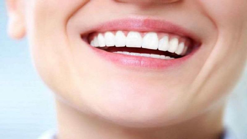 سوالات متداول درباره کامپوزیت دندان | بهترین دندانپزشک اصفهان