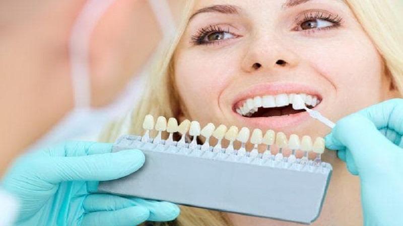 مراحل کامپوزیت دندان | بهترین دندانپزشک اصفهان