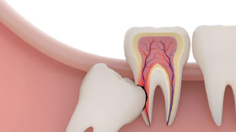 مراقبت های بعد از جراحی دندان عقل | بهترین ایمپلنت اصفهان