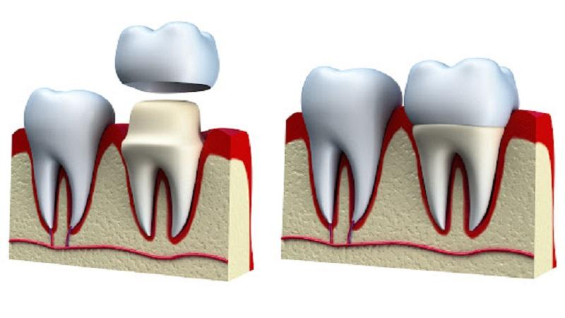 نیاز به روکش پس از عصب کشی دندان | بهترین ایمپلنت اصفهان